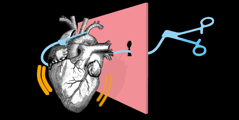 Symbolbild Minimalinvasive Herzchirurgie: Holzschnitt-Herz, Schlüsselloch, Intrathorakale Klemme / Cosgrove